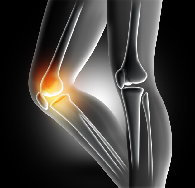 pain-in-the-knee-joint_1048-2351